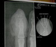 Прибил пальцы сильными магнитами - ренген